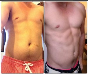 before and after photos of Elliots tummy