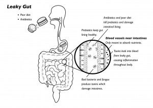 Everything You Need to Know About Leaky Gut Treatment